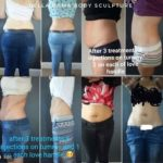 woman-jeans-stomach-pants
